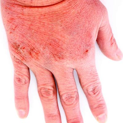 Allergic Contact Dermatitis (ACD)