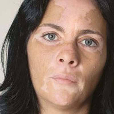 Non-Segmental Vitiligo