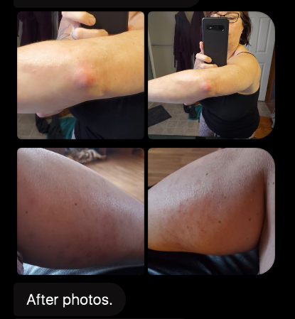 K after uvb phototherapy testimonial